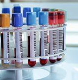 Rabies Antibody Titer Test Is Not Needed To Bring A Pet To South Africa