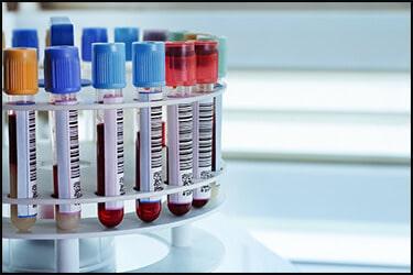 דגימות דם לבדיקת נוגדני כלבת